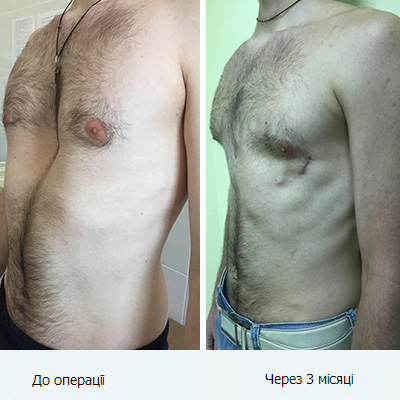 pk27_ukr